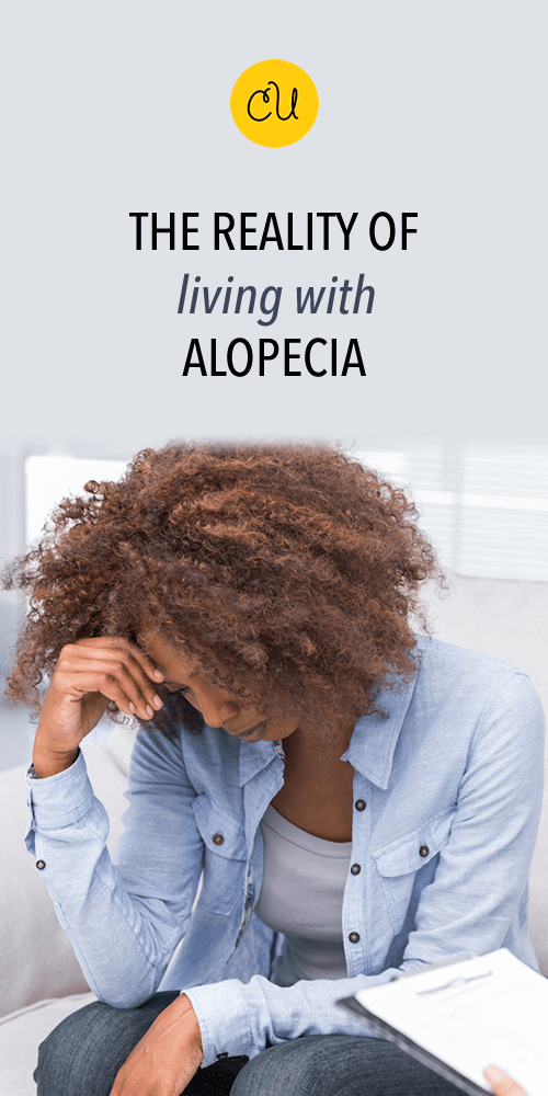 living with alopecia